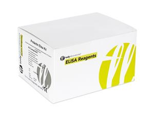 Laboratory Reagents | ELISA | kits | diagnostic | price | cost | Hormones | Fertility | Prolactin