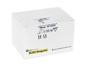 Laboratory Reagents | ELISA | kits |diagnostic | price | cost | Hepatitis | HBs Ag | 4th generation